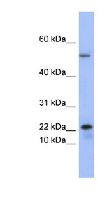 PLA2G5 antibody Western blot of Fetal Thymus lysate. This image was taken for the unconjugated form of this product. Other forms have not been tested.