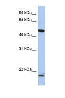PLAGL1 / ZAC Antibody - PLAGL1 / LOT1 antibody Western blot of Fetal Kidney lysate. Antibody concentration 1 ug/ml. This image was taken for the unconjugated form of this product. Other forms have not been tested.