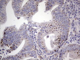 IHC of paraffin-embedded Adenocarcinoma of Human colon tissue using anti-PLAU mouse monoclonal antibody. (Heat-induced epitope retrieval by 1 mM EDTA in 10mM Tris, pH8.5, 120°C for 3min).