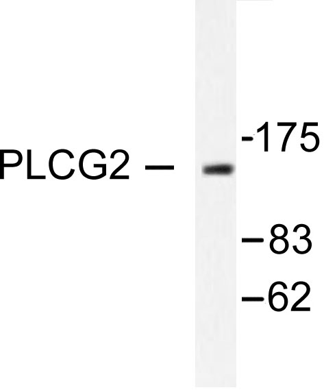 Western blot of PLCG2 (R747) pAb in extracts from COLO205 cells.