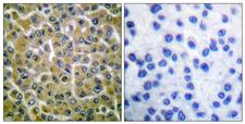 PLCG2 / PLC Gamma 2 Antibody - Immunohistochemistry analysis of paraffin-embedded human breast carcinoma, using PLCG2 (Phospho-Tyr753) Antibody. The picture on the right is blocked with the phospho peptide.