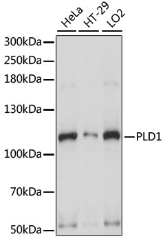 PLD1 / Phospholipase D1 Antibody - Western blot analysis of extracts of various cell lines, using PLD1 antibody at 1:1000 dilution. The secondary antibody used was an HRP Goat Anti-Rabbit IgG (H+L) at 1:10000 dilution. Lysates were loaded 25ug per lane and 3% nonfat dry milk in TBST was used for blocking. An ECL Kit was used for detection and the exposure time was 1s.