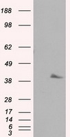 HEK293T cells were transfected with the pCMV6-ENTRY control (Left lane) or pCMV6-ENTRY PLEK (Right lane) cDNA for 48 hrs and lysed. Equivalent amounts of cell lysates (5 ug per lane) were separated by SDS-PAGE and immunoblotted with anti-PLEK.