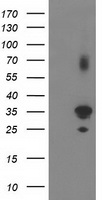 PLEKHA3 Antibody - HEK293T cells were transfected with the pCMV6-ENTRY control (Left lane) or pCMV6-ENTRY PLEKHA3 (Right lane) cDNA for 48 hrs and lysed. Equivalent amounts of cell lysates (5 ug per lane) were separated by SDS-PAGE and immunoblotted with anti-PLEKHA3.