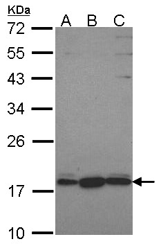 Sample (30 ug of whole cell lysate). A: Hela, B: JurKat, C: NT2D1. 12% SDS PAGE. GNRPX antibody. GNRPX / PLEKHJ1 antibody diluted at 1:1000.