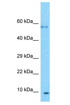 PLGLB2 / PLGLB1 Antibody - PLGLB2 / PLGLB1 antibody Western Blot of U937. Antibody dilution: 1 ug/ml.  This image was taken for the unconjugated form of this product. Other forms have not been tested.