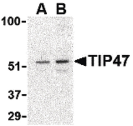 Western blot of TIP47 in Daudi cell lysate with TIP47 antibody at (A) 0.5 and (B) 1 ug/ml.
