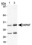 Detection of LSDP5 with LS-B5964. Lane 1, human heart lysate. Lane 2, mouse heart lysate.  This image was taken for the unconjugated form of this product. Other forms have not been tested.