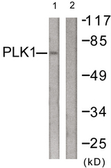 Western blot analysis of lysates from LOVO cells, treated with PMA 125ng/ml 30', using PLK1 Antibody. The lane on the right is blocked with the synthesized peptide.