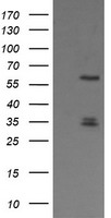 PLK1 / PLK-1 Antibody - HEK293T cells were transfected with the pCMV6-ENTRY control (Left lane) or pCMV6-ENTRY PLK1 (Right lane) cDNA for 48 hrs and lysed. Equivalent amounts of cell lysates (5 ug per lane) were separated by SDS-PAGE and immunoblotted with anti-PLK1.