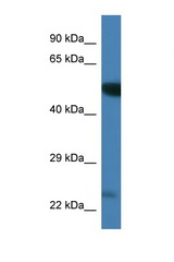 PLK3 antibody Western blot of Mouse Brain lysate. Antibody concentration 1 ug/ml. This image was taken for the unconjugated form of this product. Other forms have not been tested.