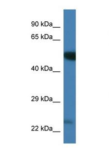PLK3 Antibody - PLK3 antibody Western blot of Mouse Brain lysate. Antibody concentration 1 ug/ml. This image was taken for the unconjugated form of this product. Other forms have not been tested.