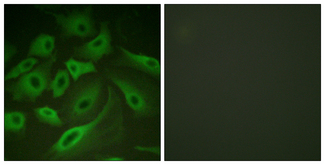 Immunofluorescence analysis of HeLa cells, using PLB Antibody. The picture on the right is blocked with the synthesized peptide.