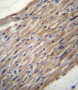 PLOD / PLOD1 Antibody - PLOD1 Antibody immunohistochemistry of formalin-fixed and paraffin-embedded human heart tissue followed by peroxidase-conjugated secondary antibody and DAB staining.