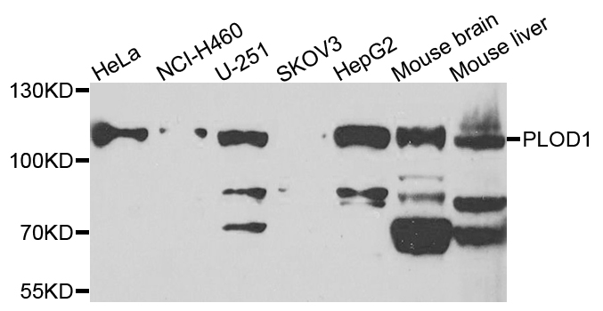 PLOD / PLOD1 Antibody - Western blot analysis of extracts of various cells.