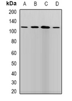 PLOD / PLOD1 Antibody - Western blot analysis of LLH expression in SKOV3 (A); HepG2 (B); mouse brain (C); mouse liver (D) whole cell lysates.