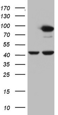 HEK293T cells were transfected with the pCMV6-ENTRY control (Left lane) or pCMV6-ENTRY PLOD2 (Right lane) cDNA for 48 hrs and lysed. Equivalent amounts of cell lysates (5 ug per lane) were separated by SDS-PAGE and immunoblotted with anti-PLOD2.