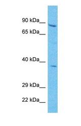 Western blot of PLOD2 Antibody with human HepG2 Whole Cell lysate.  This image was taken for the unconjugated form of this product. Other forms have not been tested.
