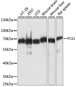 PLS1 / Fimbrin Antibody - Western blot analysis of extracts of various cell lines, using PLS1 antibody at 1:1000 dilution. The secondary antibody used was an HRP Goat Anti-Rabbit IgG (H+L) at 1:10000 dilution. Lysates were loaded 25ug per lane and 3% nonfat dry milk in TBST was used for blocking. An ECL Kit was used for detection and the exposure time was 3s.