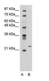PMF1 Antibody - Transfected 293T Cell Lysate.  This image was taken for the unconjugated form of this product. Other forms have not been tested.