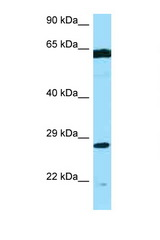 PMM2 antibody Western blot of MCF7 Cell lysate. Antibody concentration 1 ug/ml.  This image was taken for the unconjugated form of this product. Other forms have not been tested.