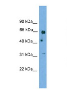 PNKP Antibody - PNKP antibody Western blot of 293T Cell lysate. Antibody concentration 1 ug/ml. This image was taken for the unconjugated form of this product. Other forms have not been tested.