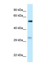 PNO1 antibody LS-C145844 Western blot of HeLa Cell lysate. Antibody concentration 1 ug/ml.  This image was taken for the unconjugated form of this product. Other forms have not been tested.