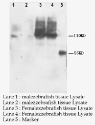 PNPLA6 / NTE Antibody -  This image was taken for the unconjugated form of this product. Other forms have not been tested.