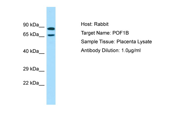 POF1B Antibody -  This image was taken for the unconjugated form of this product. Other forms have not been tested.