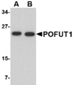 Western blot of POFUT1 in human heart tissue lysate with POFUT1 antibody at (A) 0.5 and (B) 1 ug/ml.