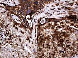 IHC of paraffin-embedded Carcinoma of Human lung tissue using anti-POGK mouse monoclonal antibody.