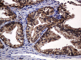 IHC of paraffin-embedded Human prostate tissue using anti-POGK mouse monoclonal antibody.