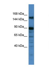 POGZ antibody Western blot of 1 Cell lysate. Antibody concentration 1 ug/ml. This image was taken for the unconjugated form of this product. Other forms have not been tested.