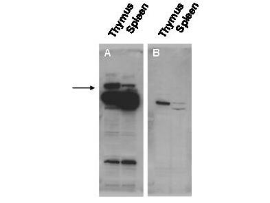 POGZ Antibody - Western blot using the affinity purified anti-Pogz antibody shows detection of Pogz protein (arrowhead) in adult mouse thymus and spleen tissue lysate (Panel A).  The lower molecular weight bands may be cross reactive proteins.  Pre-incubation of antibody with the immunizing peptide blocks specific antibody reactivity (Panel B).  Primary antibody was used at 1:20,000.