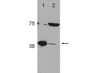 POLB / DNA Polymerase Beta Antibody - Western Blot of rabbit Anti-POLß (DNA polymerase beta) antibody. Lane 1: LN428 FLAG POLß (control). Lane 2: A172. Load: 35 µg per lane. Primary antibody: POLß antibody at 1:2000 for overnight at 4°C. Secondary antibody: goat anti-rabbit at 1:10,000 for 45 min at RT. Block: 5% BLOTTO overnight at 4°C. Predicted/Observed size: ~40 kDa, ~40 kDa. Other band(s): unknown band ~75 kDd.