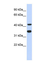 POLD2 antibody LS-C111183 Western blot of Fetal Heart lysate.  This image was taken for the unconjugated form of this product. Other forms have not been tested.