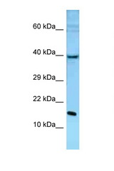 POLE3 antibody Western blot of Mouse Liver lysate. Antibody concentration 1 ug/ml.  This image was taken for the unconjugated form of this product. Other forms have not been tested.