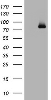 POLI Antibody - HEK293T cells were transfected with the pCMV6-ENTRY control (Left lane) or pCMV6-ENTRY POLI (Right lane) cDNA for 48 hrs and lysed. Equivalent amounts of cell lysates (5 ug per lane) were separated by SDS-PAGE and immunoblotted with anti-POLI.