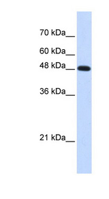 POLM / DNA Polymerase Mu Antibody - POLM antibody Western blot of Transfected 293T cell lysate. This image was taken for the unconjugated form of this product. Other forms have not been tested.