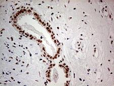 POLR2A / RNA polymerase II Antibody - Immunohistochemical staining of paraffin-embedded Human breast tissue within the normal limits using anti-POLR2A mouse monoclonal antibody. (Heat-induced epitope retrieval by 1mM EDTA in 10mM Tris buffer. (pH8.5) at 120°C for 3 min. (1:500)