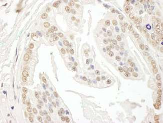 Detection of Human POLR3D by Immunohistochemistry. Sample: FFPE section of human prostate carcinoma. Antibody: Affinity purified rabbit anti-POLR3D used at a dilution of 1:1000 (0.2 ug/ml). Detection: DAB.