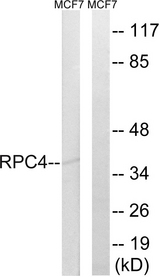 Western blot analysis of lysates from MCF-7 cells, using RPC4 Antibody. The lane on the right is blocked with the synthesized peptide.