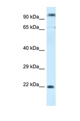 POLR3GL antibody Western blot of MCF7 Cell lysate. Antibody concentration 1 ug/ml.  This image was taken for the unconjugated form of this product. Other forms have not been tested.