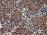 IHC of paraffin-embedded Adenocarcinoma of Human ovary tissue using anti-POMC mouse monoclonal antibody. (Heat-induced epitope retrieval by 10mM citric buffer, pH6.0, 120°C for 3min).