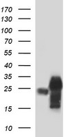 HEK293T cells were transfected with the pCMV6-ENTRY control (Left lane) or pCMV6-ENTRY POMC (Right lane) cDNA for 48 hrs and lysed. Equivalent amounts of cell lysates (5 ug per lane) were separated by SDS-PAGE and immunoblotted with anti-POMC.