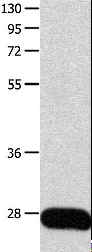 Western blot analysis of Human liver cancer tissue, using POMC Polyclonal Antibody at dilution of 1:450.