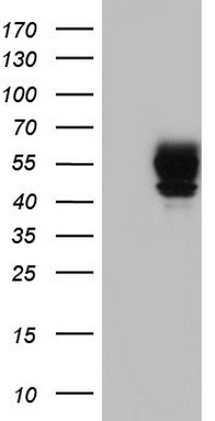 HEK293T cells were transfected with the pCMV6-ENTRY control (Left lane) or pCMV6-ENTRY SGK196 (Right lane) cDNA for 48 hrs and lysed. Equivalent amounts of cell lysates (5 ug per lane) were separated by SDS-PAGE and immunoblotted with anti-SGK196.