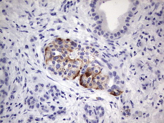 IHC of paraffin-embedded Carcinoma of Human pancreas tissue using anti-SGK196 Mouse monoclonal antibody. (heat-induced epitope retrieval by 1 mM EDTA in 10mM Tris, pH8.5, 120°C for 3min).