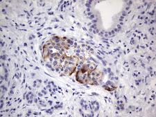 POMK / SGK196 Antibody - Immunohistochemical staining of paraffin-embedded Carcinoma of Human pancreas tissue using anti-SGK196 Mouse monoclonal antibody.  heat-induced epitope retrieval by 1 mM EDTA in 10mM Tris, pH8.5, 120C for 3min)
