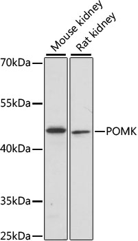 Western blot analysis of extracts of various cell lines, using POMK antibody at 1:1000 dilution. The secondary antibody used was an HRP Goat Anti-Rabbit IgG (H+L) at 1:10000 dilution. Lysates were loaded 25ug per lane and 3% nonfat dry milk in TBST was used for blocking. An ECL Kit was used for detection and the exposure time was 30s.